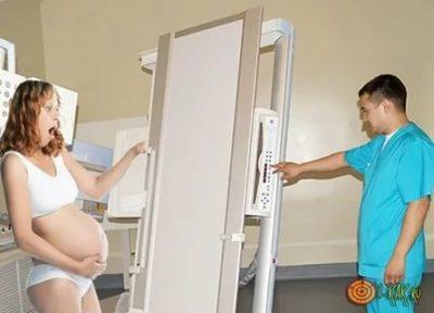Можно ли делать флюорографию во время беременности
