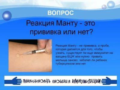 Нужно ли ставить прививку Манту