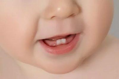 Когда у ребенка начинают резаться зубы