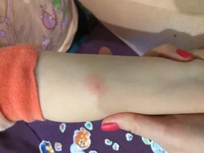 Можно ли купать ребенка после прививки манту
