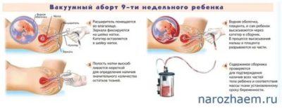 На каком сроке можно сделать аборт