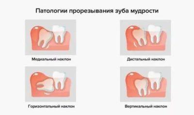 Когда начинают резаться зубы мудрости