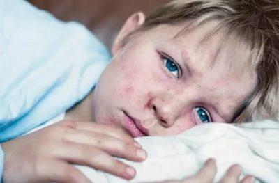 Когда больной корью заразен