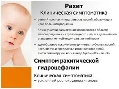 Как понять что у ребенка рахит