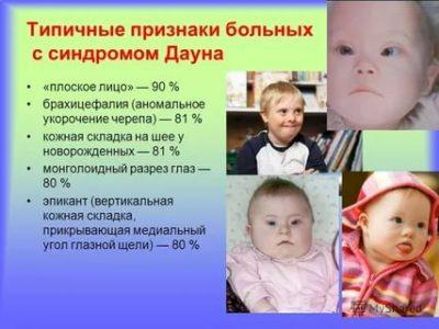 В каком возрасте проявляется синдром Дауна