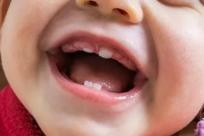 Какой первый зуб вырастает у ребенка