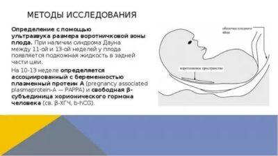 На каком сроке беременности можно определить синдром Дауна