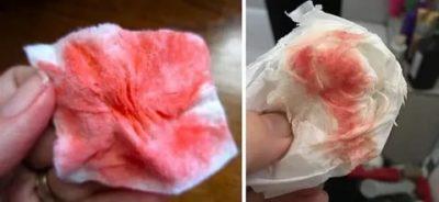 Какого цвета кровь при беременности