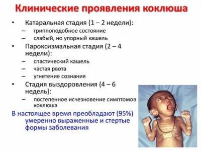 Сколько длится Коклюш у детей