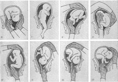 Как повернуть плод в утробе