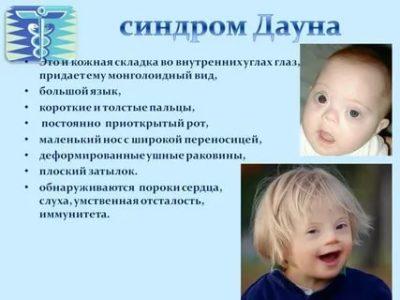 В каком возрасте можно определить синдром Дауна