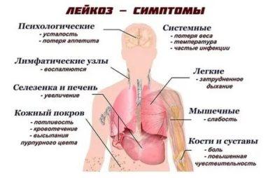 Какие признаки лейкемии у детей