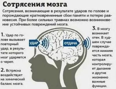 Как понять что у ребенка сотрясение мозга