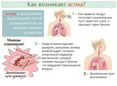 Как начинается астма у детей