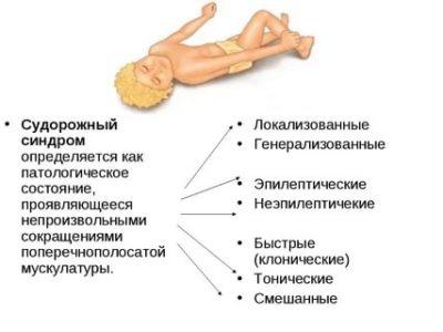 Что такое судорожный синдром у детей