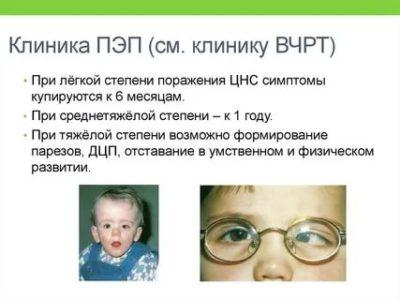 Что такое перинатальная энцефалопатия у детей