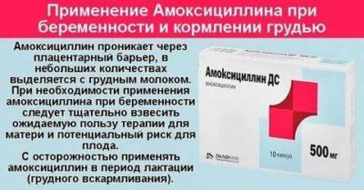 Можно ли применять амоксициллин во время беременности