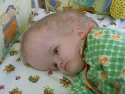 Что такое гидроцефалия у ребенка