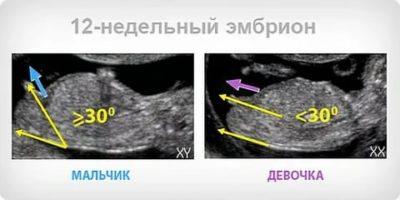 Можно ли определить пол ребенка на 12 неделе беременности