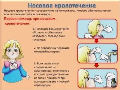 Как быстро остановить кровь из носа у ребенка