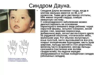 Почему дети рождаются с синдромом Дауна