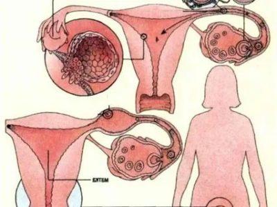 Можно ли родить нормального ребенка при внематочной беременности