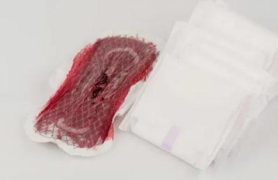 Откуда идет кровь во время месячных