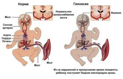 Что такое гипоксия плода